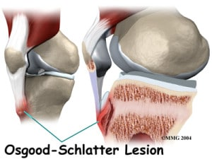 Illustration of Osgood Schlatter Disease