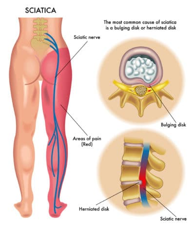 sciatic, bulging disc, herniated disc